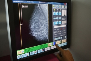 Casi 7.000 extreme�as se har�n mamograf�as en septiembre dentro del Programa de Detecci�n Precoz del C�ncer de Mama