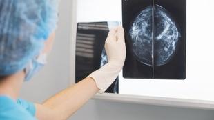 Unas 7.000 extremeñas se someterán a mamografías en noviembre dentro del Programa de Detección Precoz del Cáncer de Mama