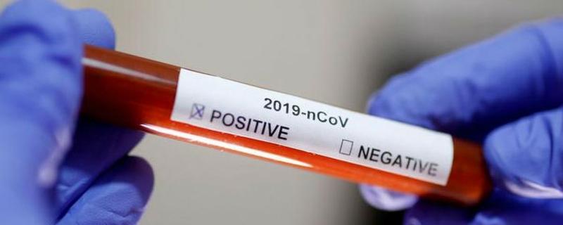 El personal especializado en técnicas de PCR de CICYTEX prestará apoyo a las autoridades sanitarias en la crisis el COVID-19
